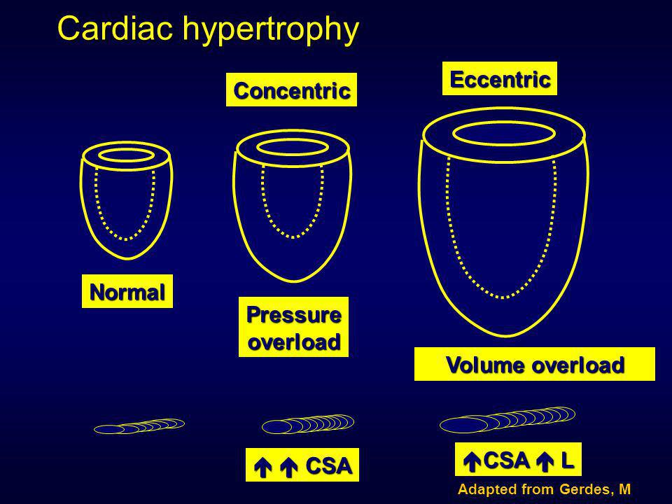 Cardiac hypertrophy Concentric Eccentric Normal Pressure overload Volume overload   CSA  CSA  L Adapted from Gerdes, M