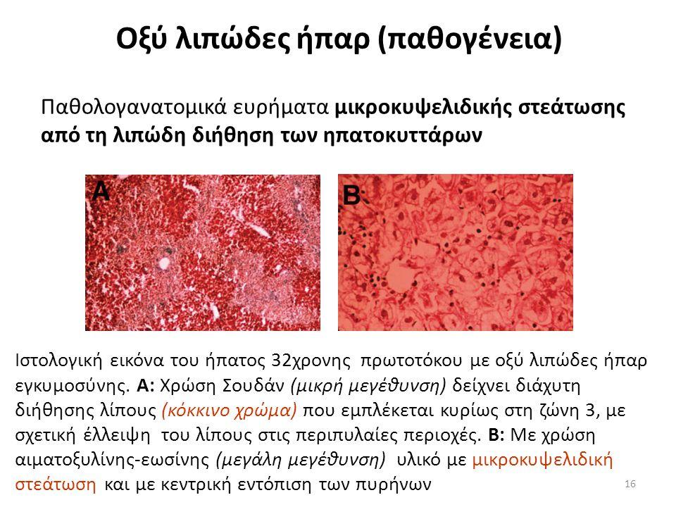 Παθολογανατομικά ευρήματα μικροκυψελιδικής στεάτωσης από τη λιπώδη διήθηση των ηπατοκυττάρων 16 Οξύ λιπώδες ήπαρ (παθογένεια) Ιστολογική εικόνα του ήπατος 32χρονης πρωτοτόκου με οξύ λιπώδες ήπαρ εγκυμοσύνης.