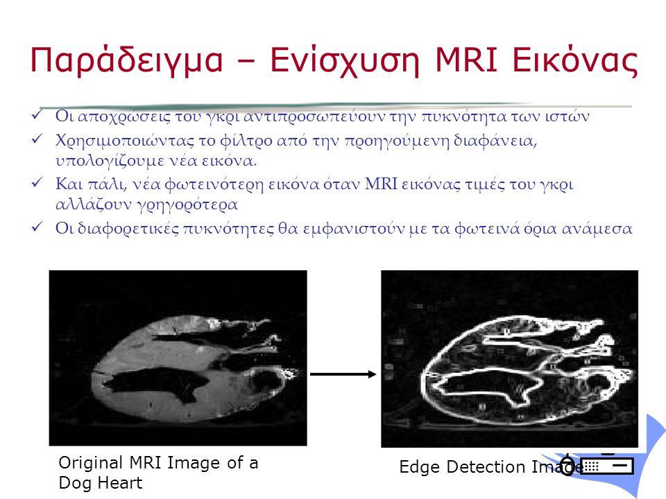 Οι αποχρώσεις του γκρι αντιπροσωπεύουν την πυκνότητα των ιστών Χρησιμοποιώντας το φίλτρο από την προηγούμενη διαφάνεια, υπολογίζουμε νέα εικόνα.