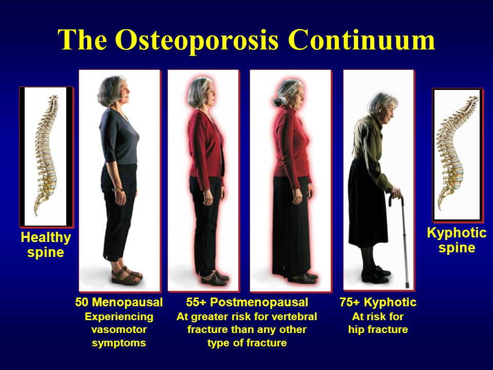 The Osteoporosis Continuum 75+ Kyphotic At risk for hip fracture 55+ Postmenopausal At greater risk for vertebral fracture than any other type of frac