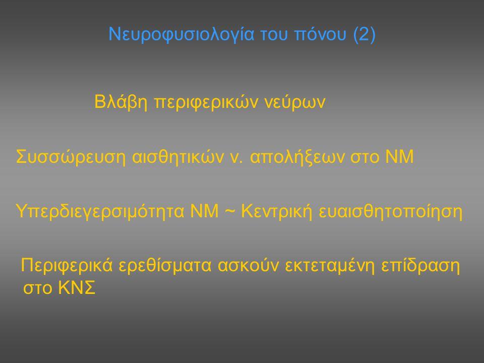 Νευροφυσιολογία του πόνου (2) Βλάβη περιφερικών νεύρων Συσσώρευση αισθητικών ν. απολήξεων στο ΝΜ Υπερδιεγερσιμότητα ΝΜ ~ Κεντρική ευαισθητοποίηση Περι