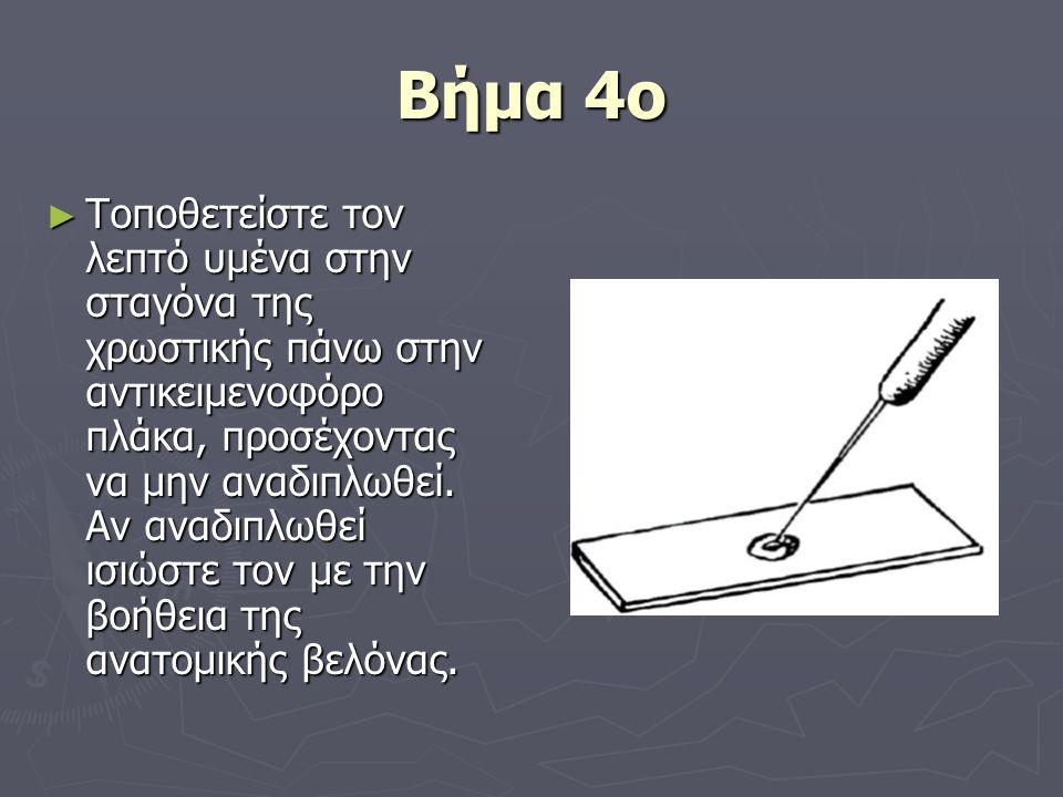 Βήμα 4ο ► Τοποθετείστε τον λεπτό υμένα στην σταγόνα της χρωστικής πάνω στην αντικειμενοφόρο πλάκα, προσέχοντας να μην αναδιπλωθεί. Αν αναδιπλωθεί ισιώ