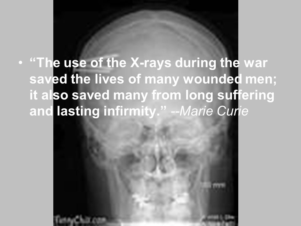 """The use of the X-rays during the war saved the lives of many wounded men; it also saved many from long suffering and lasting infirmity."" --Marie Curi"