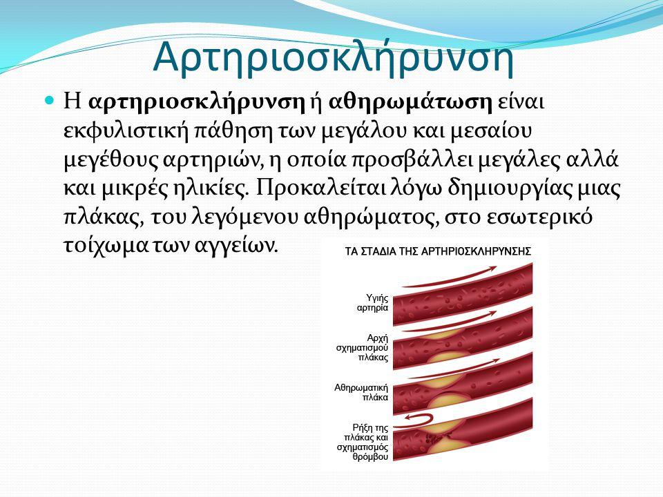 Αρτηριοσκλήρυνση Η αρτηριοσκλήρυνση ή αθηρωμάτωση είναι εκφυλιστική πάθηση των μεγάλου και μεσαίου μεγέθους αρτηριών, η οποία προσβάλλει μεγάλες αλλά και μικρές ηλικίες.