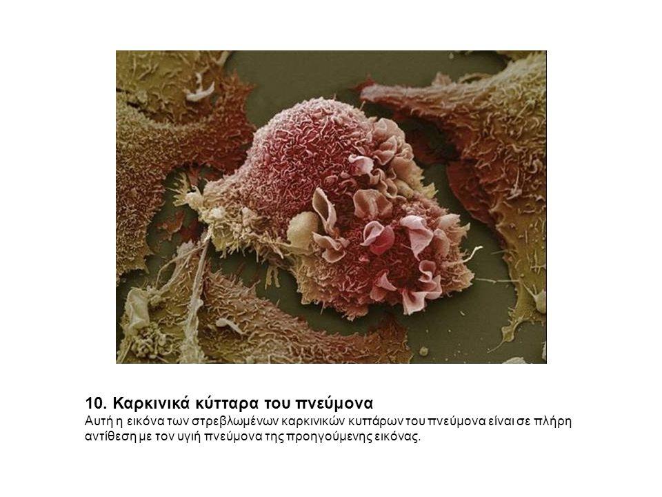10. Καρκινικά κύτταρα του πνεύμονα Αυτή η εικόνα των στρεβλωμένων καρκινικών κυττάρων του πνεύμονα είναι σε πλήρη αντίθεση με τον υγιή πνεύμονα της πρ