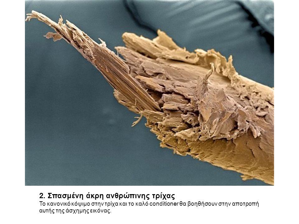 3.Νευρώνες Purkinje Από τους 100 δισεκατομμύρια νευρώνες στον εγκέφαλό σας.