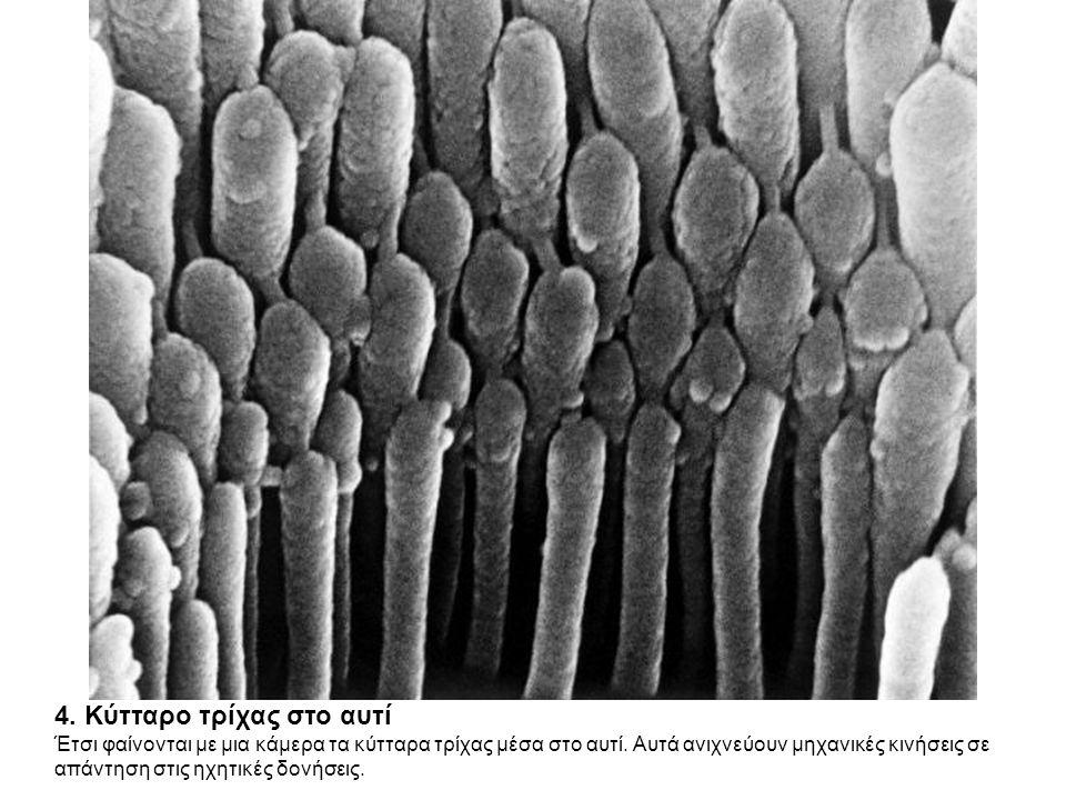 4.Κύτταρο τρίχας στο αυτί Έτσι φαίνονται με μια κάμερα τα κύτταρα τρίχας μέσα στο αυτί.