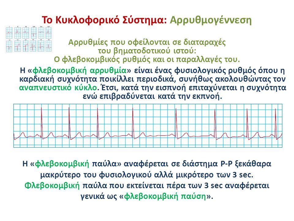 Το Κυκλοφορικό Σύστημα: Αρρυθμογέννεση Αρρυθμίες που οφείλονται σε διαταραχές του βηματοδοτικού ιστού: Ο φλεβοκομβικός ρυθμός και οι παραλλαγές του. Η