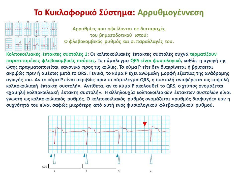 Το Κυκλοφορικό Σύστημα: Αρρυθμογέννεση Αρρυθμίες που οφείλονται σε διαταραχές του βηματοδοτικού ιστού: Ο φλεβοκομβικός ρυθμός και οι παραλλαγές του. Κ