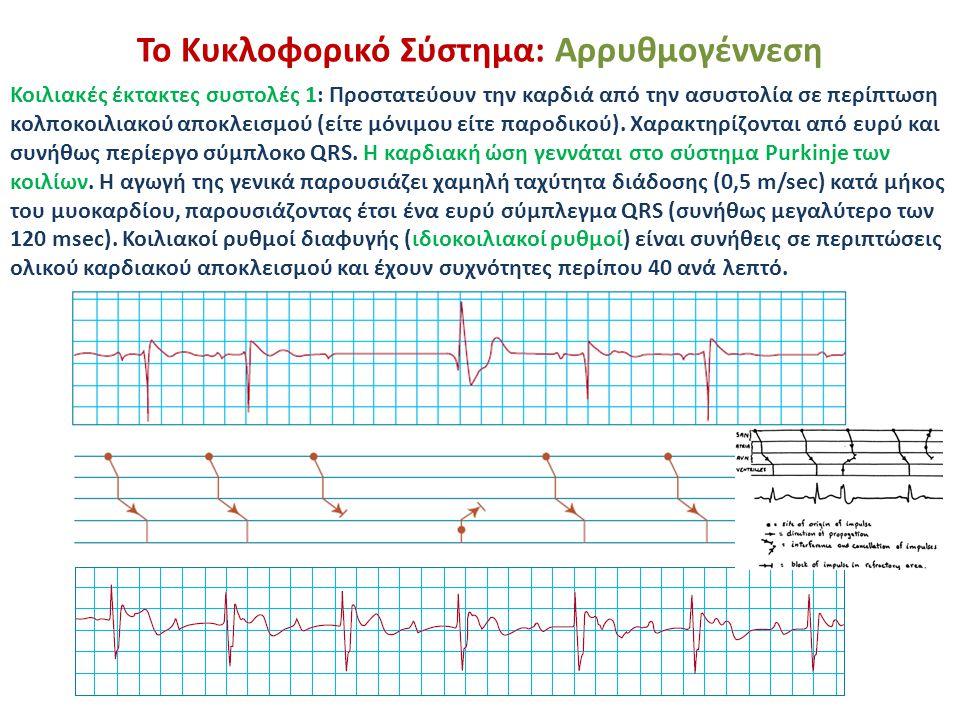 Το Κυκλοφορικό Σύστημα: Αρρυθμογέννεση Κοιλιακές έκτακτες συστολές 1: Προστατεύουν την καρδιά από την ασυστολία σε περίπτωση κολποκοιλιακού αποκλεισμο