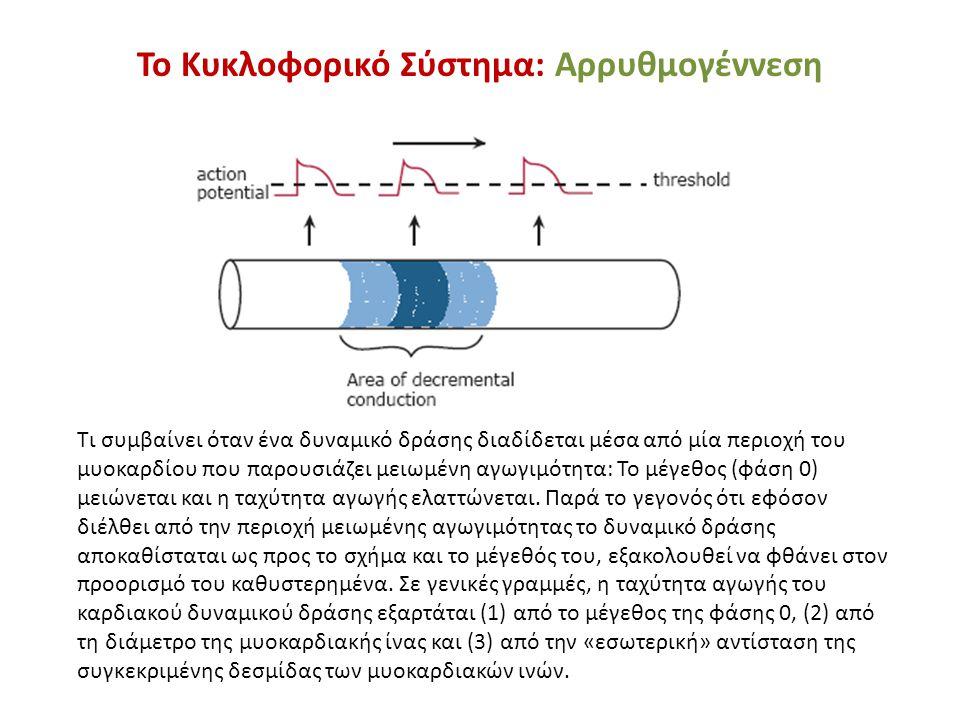 Το Κυκλοφορικό Σύστημα: Αρρυθμογέννεση Τι συμβαίνει όταν ένα δυναμικό δράσης διαδίδεται μέσα από μία περιοχή του μυοκαρδίου που παρουσιάζει μειωμένη α