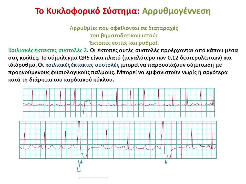 Το Κυκλοφορικό Σύστημα: Αρρυθμογέννεση Αρρυθμίες που οφείλονται σε διαταραχές του βηματοδοτικού ιστού: Έκτοπες εστίες και ρυθμοί. Κοιλιακές έκτακτες σ