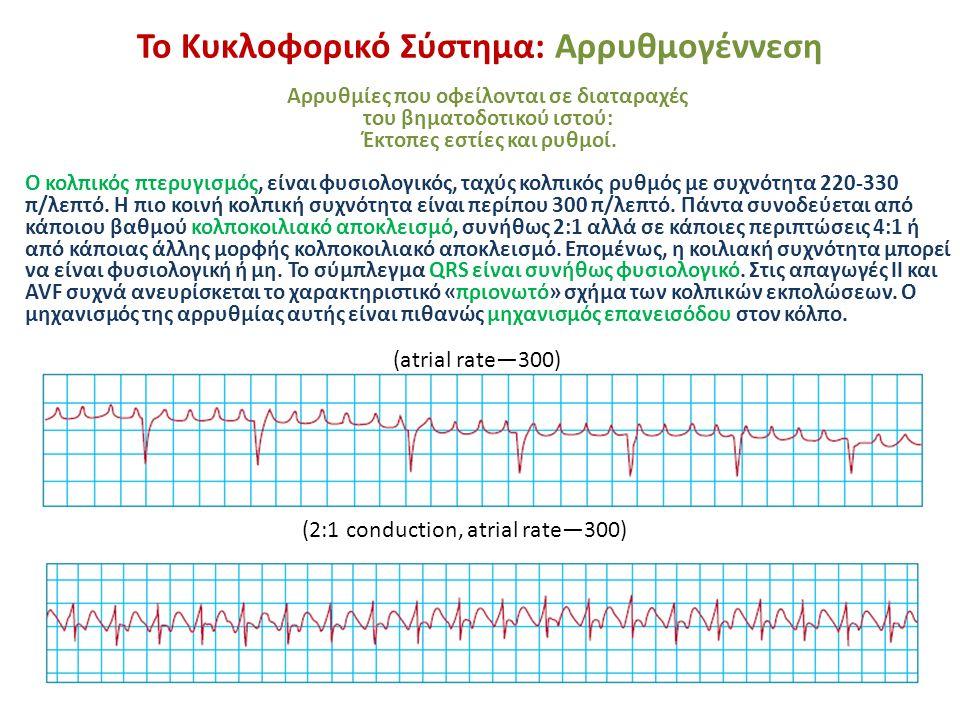 Το Κυκλοφορικό Σύστημα: Αρρυθμογέννεση Αρρυθμίες που οφείλονται σε διαταραχές του βηματοδοτικού ιστού: Έκτοπες εστίες και ρυθμοί. Ο κολπικός πτερυγισμ