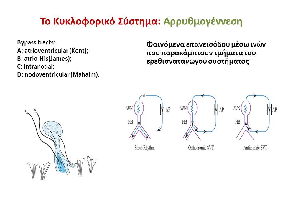 Το Κυκλοφορικό Σύστημα: Αρρυθμογέννεση Bypass tracts: A: atrioventricular (Kent); B: atrio-His(James); C: Intranodal; D: nodoventricular (Mahaim). Φαι