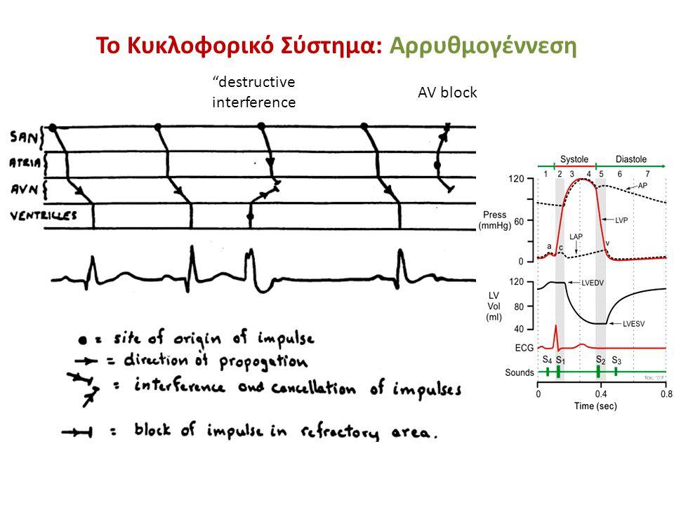 """Το Κυκλοφορικό Σύστημα: Αρρυθμογέννεση """"destructive interference AV block"""