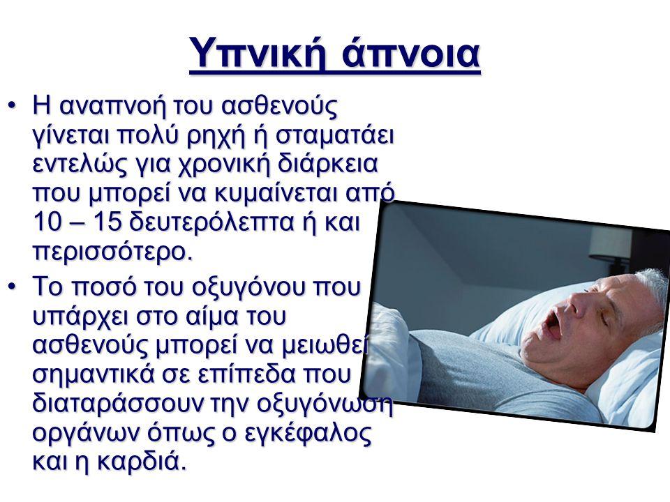 Υπνική άπνοια Η αναπνοή του ασθενούς γίνεται πολύ ρηχή ή σταματάει εντελώς για χρονική διάρκεια που μπορεί να κυμαίνεται από 10 – 15 δευτερόλεπτα ή κα