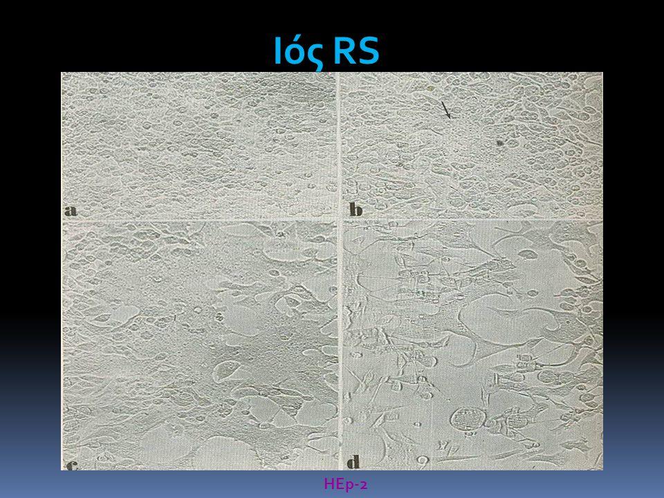 Ιός RS HΕp-2