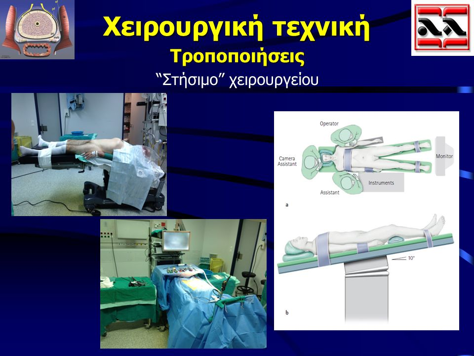 """Χειρουργική τεχνική Τροποποιήσεις """"Στήσιμο"""" χειρουργείου """"Στήσιμο"""" χειρουργείου"""