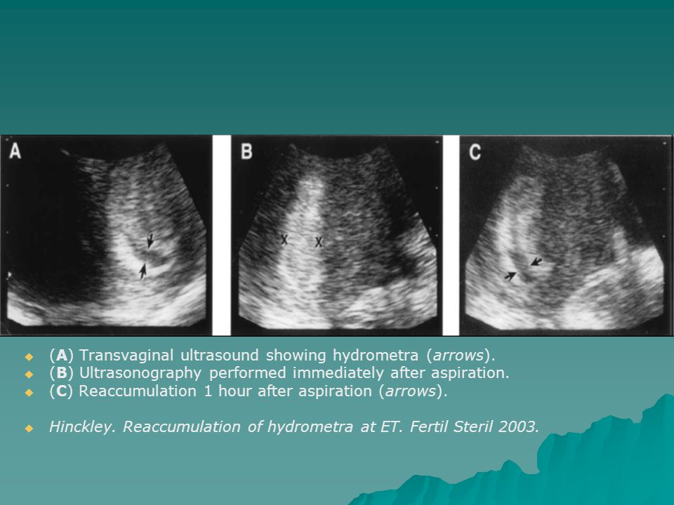   (A) Transvaginal ultrasound showing hydrometra (arrows).   (B) Ultrasonography performed immediately after aspiration.   (C) Reaccumulation 1