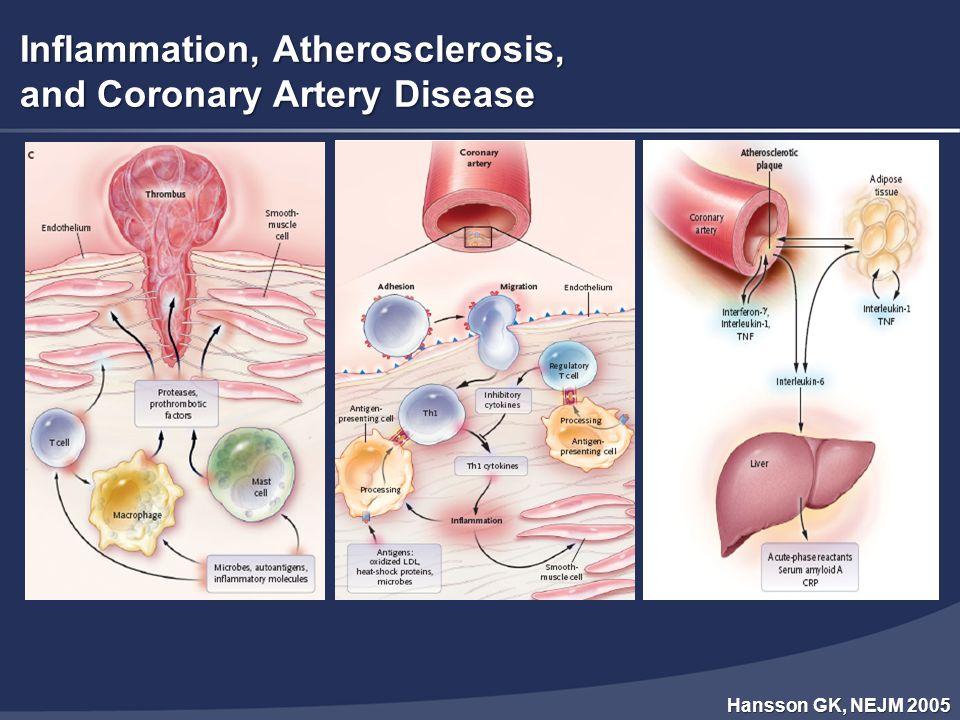 Bradley TD, Floras J, Lancet 2009 ΣΑΑΥ και Καρδιαγγειακές Παθήσεις