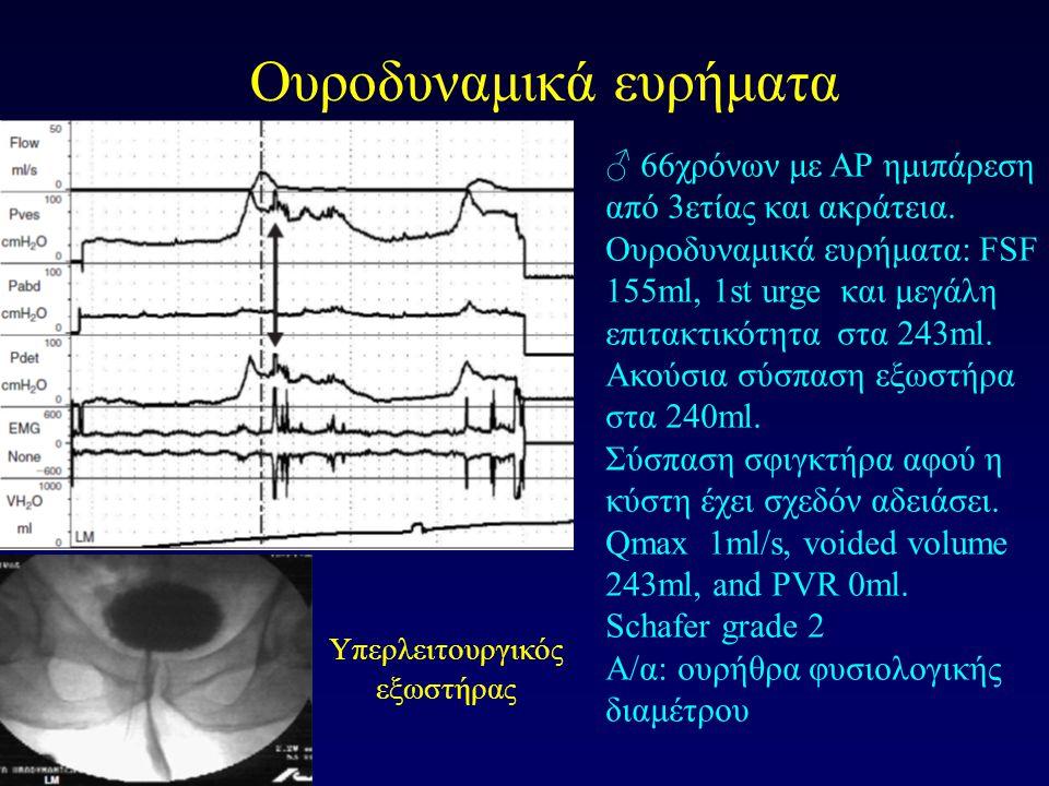 Ουροδυναμικά ευρήματα ♂ 66χρόνων με ΑΡ ημιπάρεση από 3ετίας και ακράτεια. Ουροδυναμικά ευρήματα: FSF 155ml, 1st urge και μεγάλη επιτακτικότητα στα 243