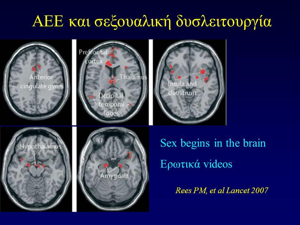 Rees PM, et al Lancet 2007 AEE και σεξουαλική δυσλειτουργία Sex begins in the brain Ερωτικά videos