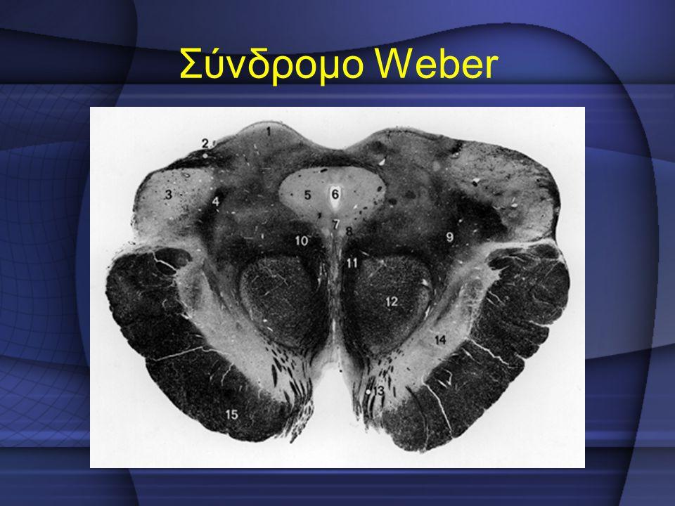 Σύνδρομο Weber