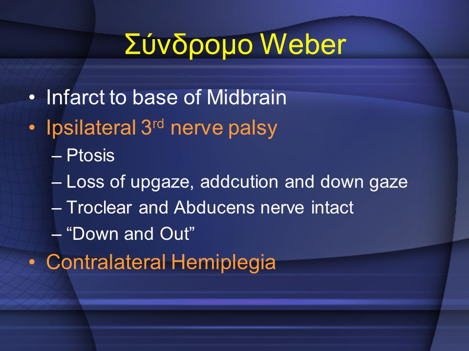 "Infarct to base of Midbrain Ipsilateral 3 rd nerve palsy –Ptosis –Loss of upgaze, addcution and down gaze –Troclear and Abducens nerve intact –""Down a"