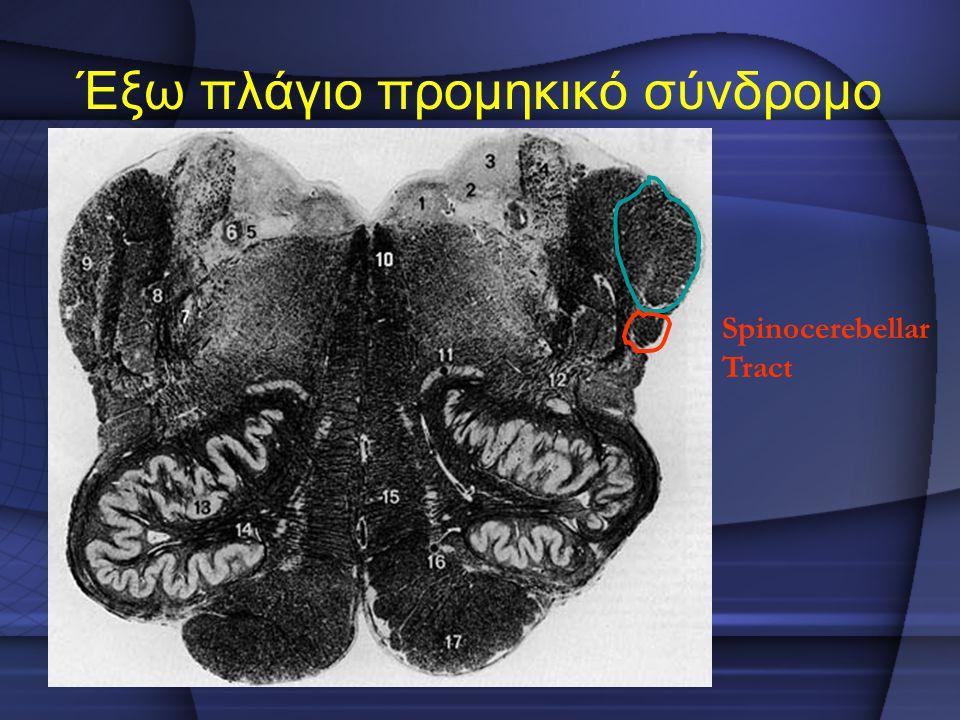 Έξω πλάγιο προμηκικό σύνδρομο Spinocerebellar Tract