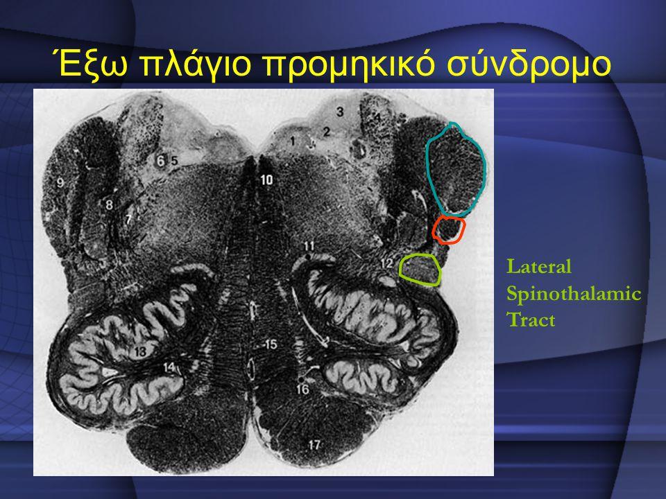 Έξω πλάγιο προμηκικό σύνδρομο Lateral Spinothalamic Tract