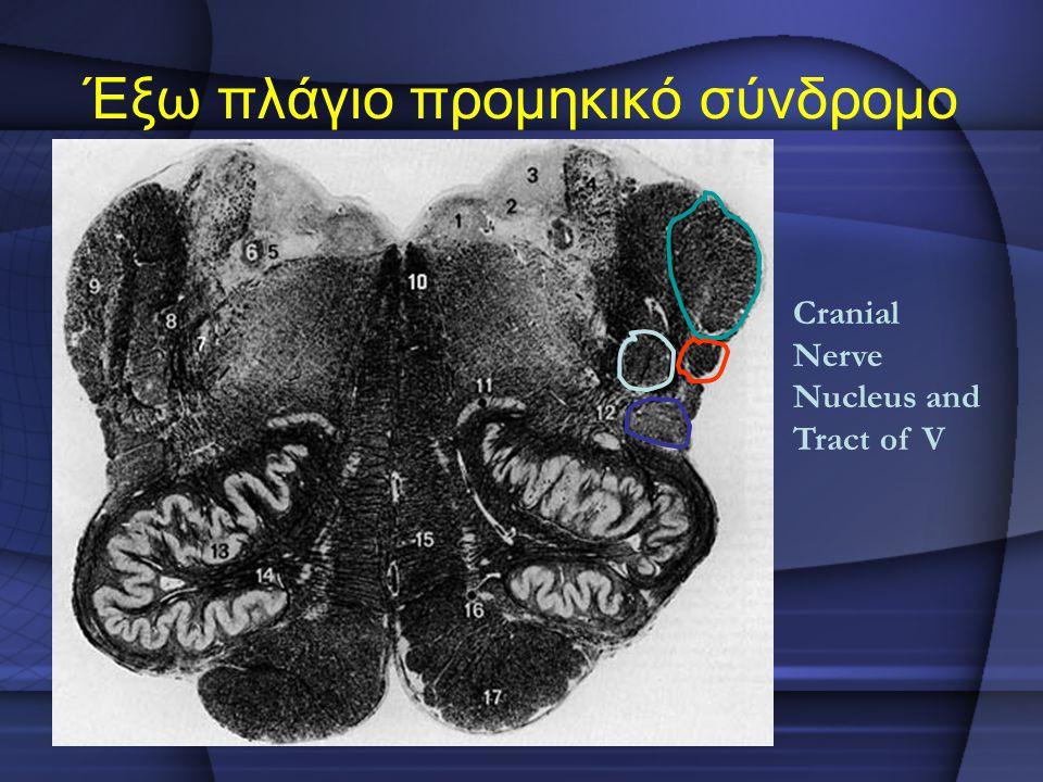Έξω πλάγιο προμηκικό σύνδρομο Cranial Nerve Nucleus and Tract of V