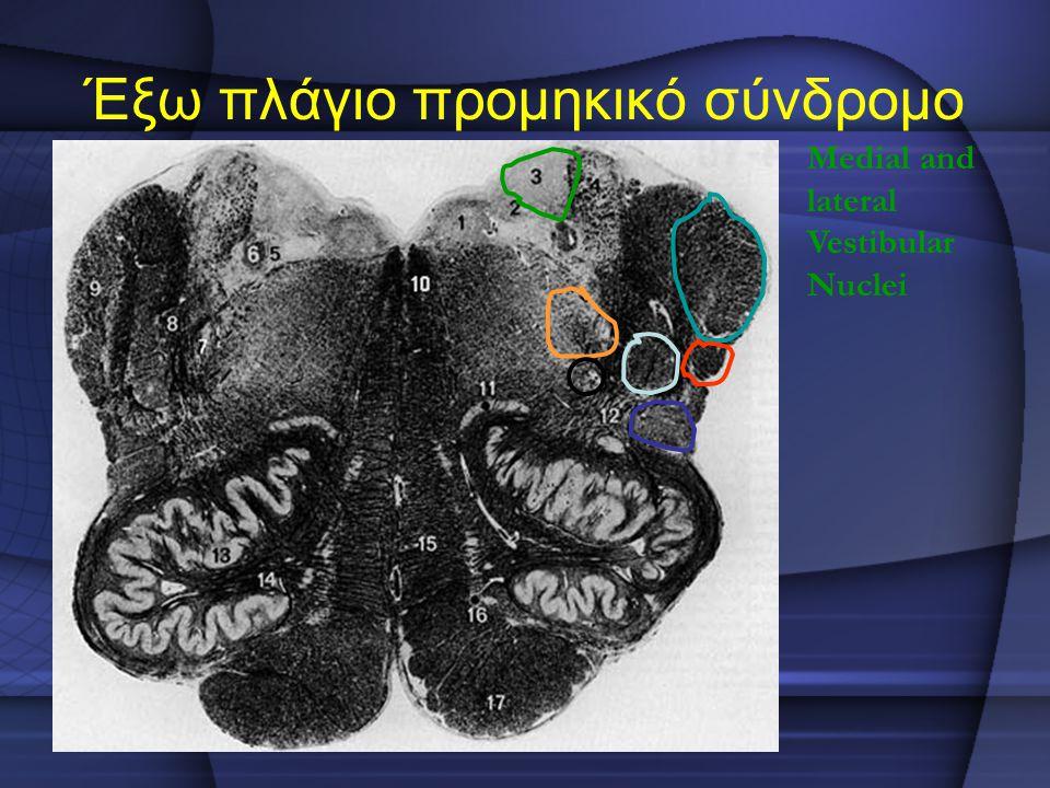 Έξω πλάγιο προμηκικό σύνδρομο Medial and lateral Vestibular Nuclei