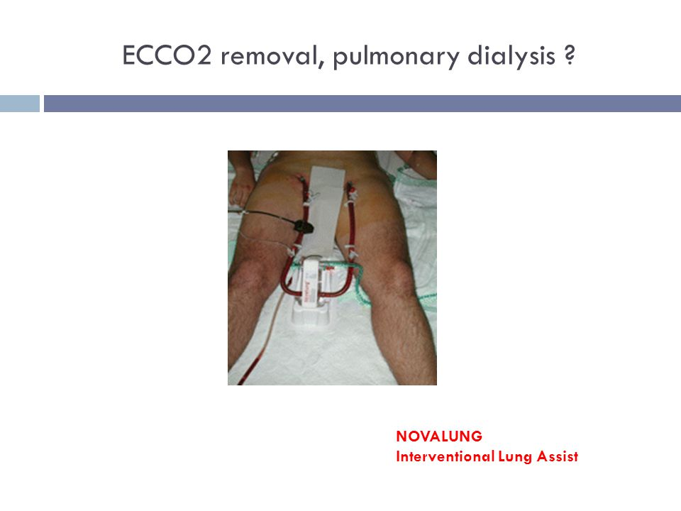 ECCO2 removal, pulmonary dialysis ? NOVALUNG Interventional Lung Assist