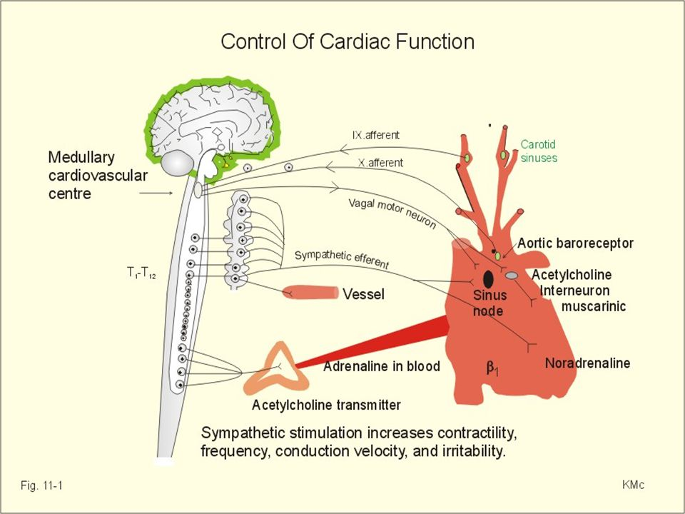 Definition of heart failure AHA / ACC HF guidelines 2001 Clinical syndrome that can result from any structural or functional cardiac disorder that impairs the ability of the ventricle to fill with or eject blood Clinical symptoms / signs secondary to abnormal ventricular function ESC HF guidelines 2001 HEART FAILURE