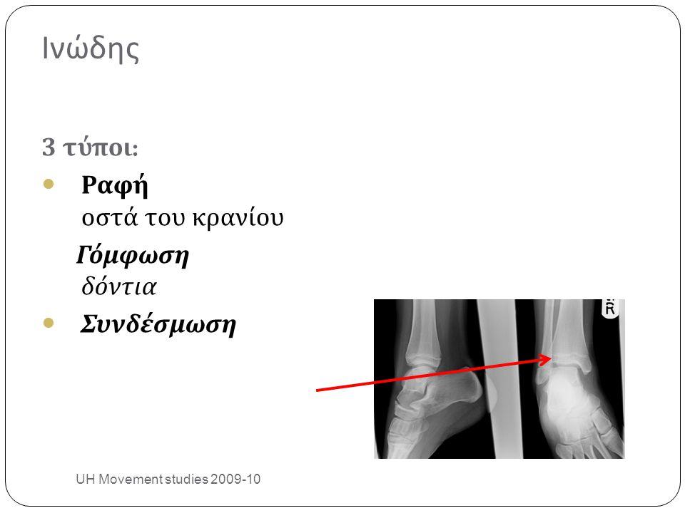 Ινώδης 3 τύποι : Ραφή οστά του κρανίου Γόμφωση δόντια Συνδέσμωση UH Movement studies 2009-10 19