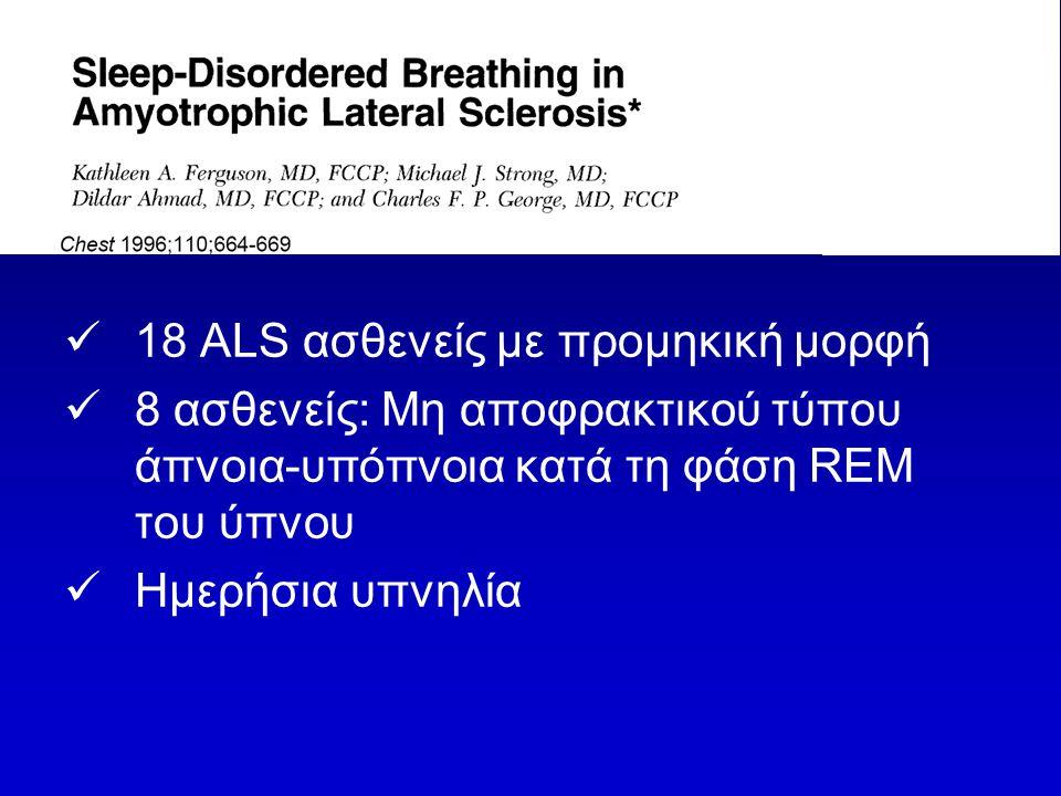 18 ALS ασθενείς με προμηκική μορφή 8 ασθενείς: Μη αποφρακτικού τύπου άπνοια-υπόπνοια κατά τη φάση REM του ύπνου Ημερήσια υπνηλία