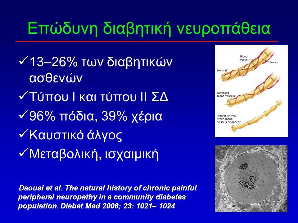 Επώδυνη διαβητική νευροπάθεια 13–26% των διαβητικών ασθενών Τύπου Ι και τύπου ΙΙ ΣΔ 96% πόδια, 39% χέρια Καυστικό άλγος Μεταβολική, ισχαιμική Daousi e