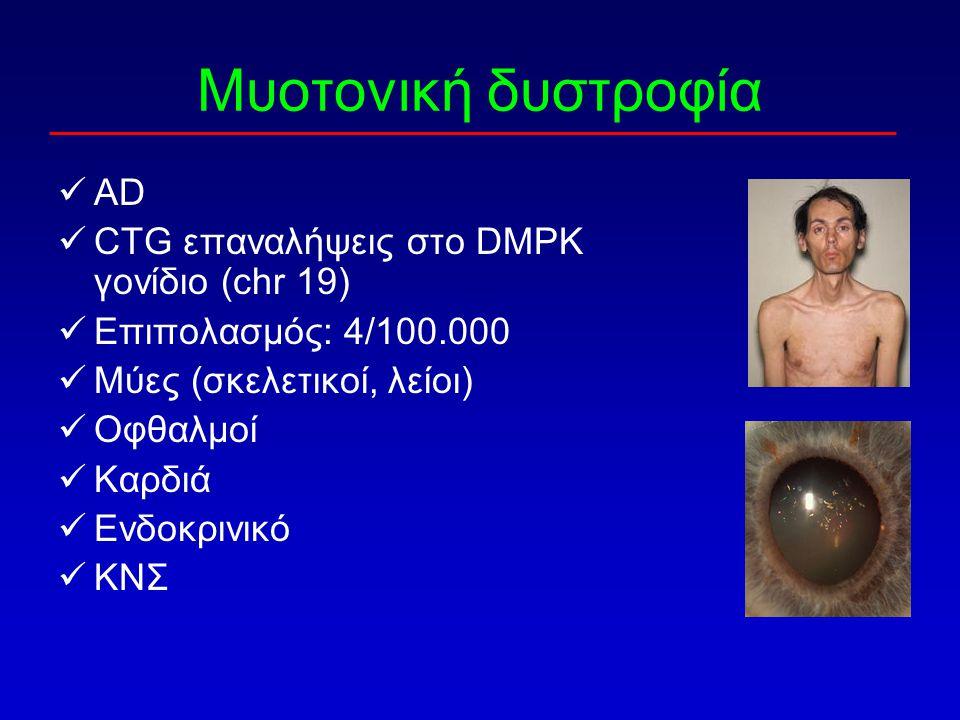 AD CTG επαναλήψεις στο DMPK γονίδιο (chr 19) Επιπολασμός: 4/100.000 Μύες (σκελετικοί, λείοι) Οφθαλμοί Καρδιά Ενδοκρινικό ΚΝΣ