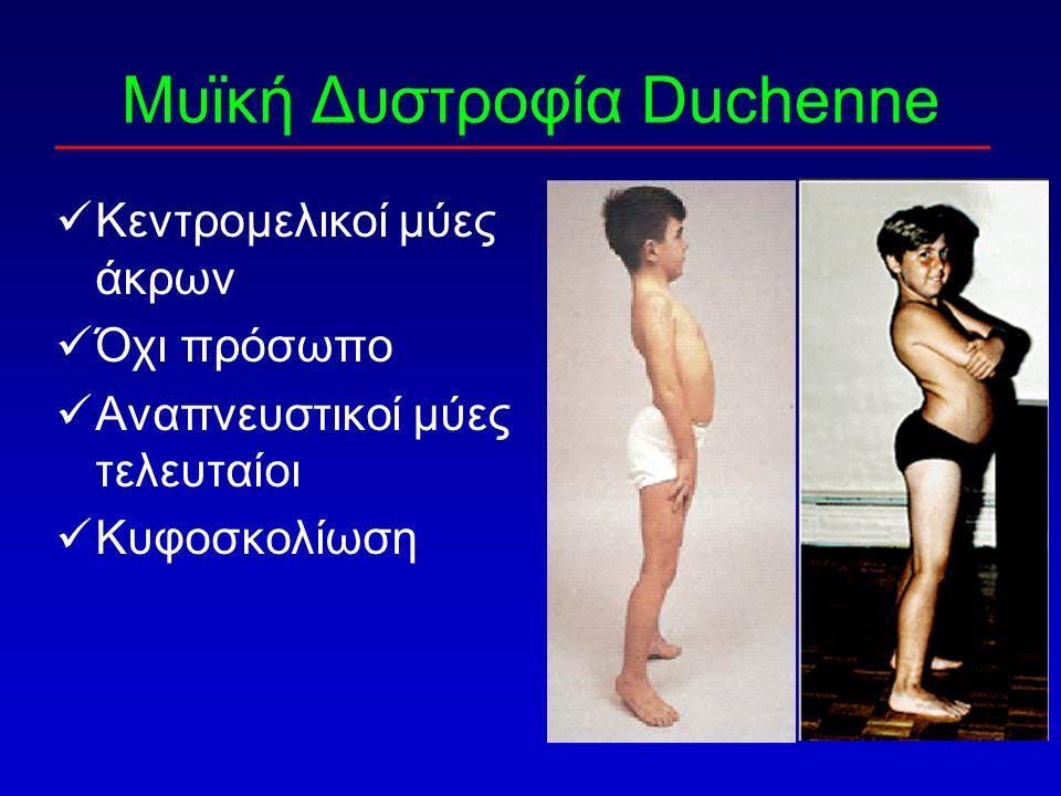 Μυϊκή Δυστροφία Duchenne Κεντρομελικοί μύες άκρων Όχι πρόσωπο Αναπνευστικοί μύες τελευταίοι Κυφοσκολίωση