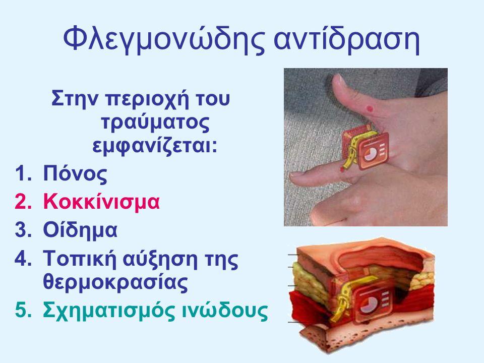 Πόνος Οφείλεται: στον τραυματισμό των απολήξεων των νευρικών κυττάρων και στη δράση πάνω τους τοξινών που απελευθερώνονται από τους μικροοργανισμούς