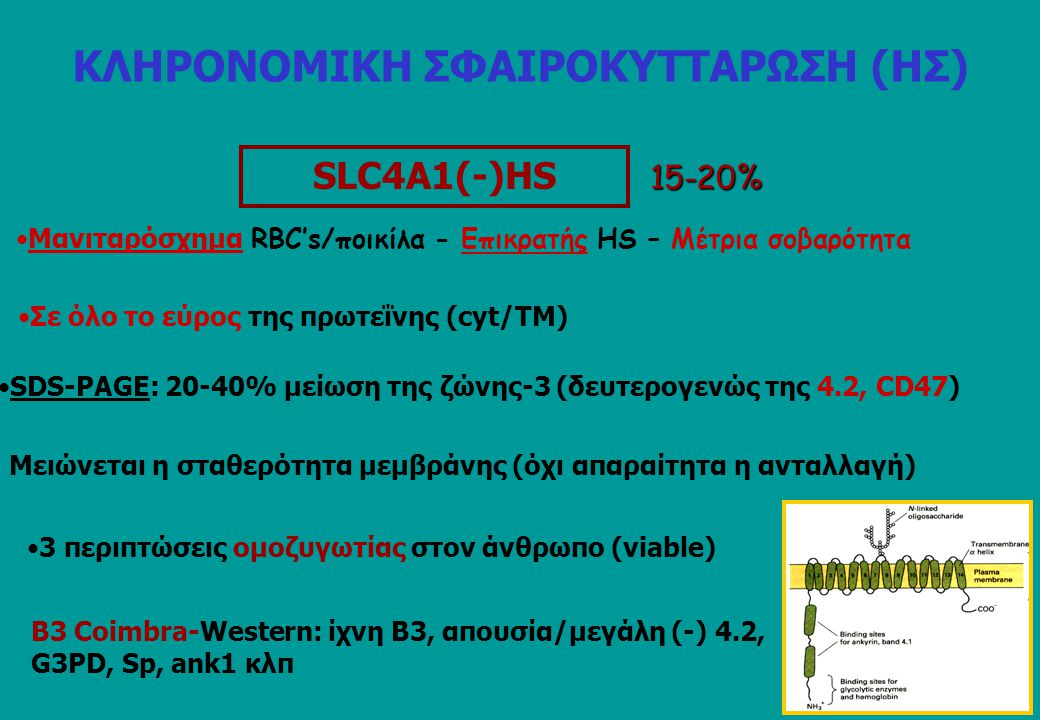 SLC4A1(-)HS 15-20% Μανιταρόσχημα RBC's/ποικίλα - Eπικρατής HS – Mέτρια σοβαρότητα Σε όλο το εύρος της πρωτεΐνης (cyt/TM) SDS-PAGE: 20-40% μείωση της ζώνης-3 (δευτερογενώς της 4.2, CD47) 3 περιπτώσεις ομοζυγωτίας στον άνθρωπο (viable) Β3 Coimbra-Western: ίχνη Β3, απουσία/μεγάλη (-) 4.2, G3PD, Sp, ank1 κλπ Mειώνεται η σταθερότητα μεμβράνης (όχι απαραίτητα η ανταλλαγή) ΚΛΗΡΟΝΟΜΙΚΗ ΣΦΑΙΡΟΚΥΤΤΑΡΩΣΗ (ΗΣ)