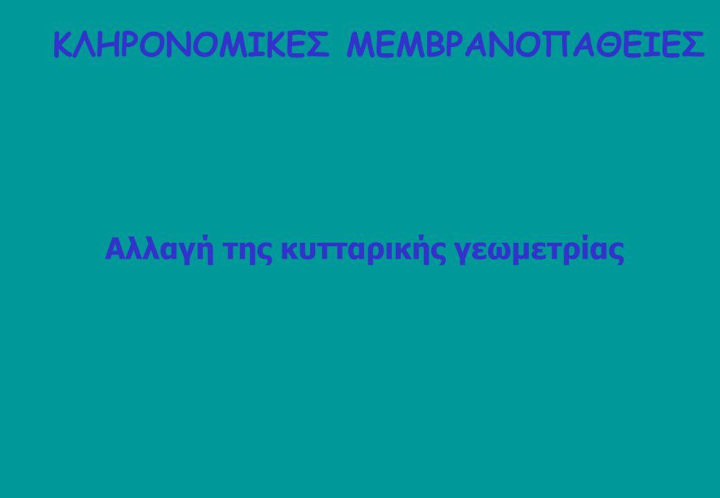 anti-Hb 65% of ghosts 55% of skeletons (HMW) C oxyblot analysis 75% of ghosts (Margetis P, Antonelou M, Karababa F, Loutradi A, Margaritis LH, Papassideri I, 2007; BCMD 38:210) ΚΛΗΡΟΝΟΜΙΚΗ ΣΦΑΙΡΟΚΥΤΤΑΡΩΣΗ (ΗΣ)