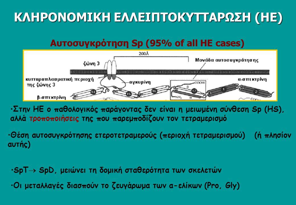 Αυτοσυγκρότηση Sp (95% of all HΕ cases) Θέση αυτοσυγκρότησης ετεροτετραμερούς (περιοχή τετραμερισμού) (ή πλησίον αυτής) SpT  SpD, μειώνει τη δομική σταθερότητα των σκελετών Οι μεταλλαγές διασπούν το ζευγάρωμα των α-ελίκων (Pro, Gly) Στην ΗΕ ο παθολογικός παράγοντας δεν είναι η μειωμένη σύνθεση Sp (HS), αλλά τροποποιήσεις της που παρεμποδίζουν τον τετραμερισμό ΚΛΗΡΟΝΟΜΙΚΗ ΕΛΛΕΙΠΤΟΚΥΤΤΑΡΩΣΗ (ΗΕ)