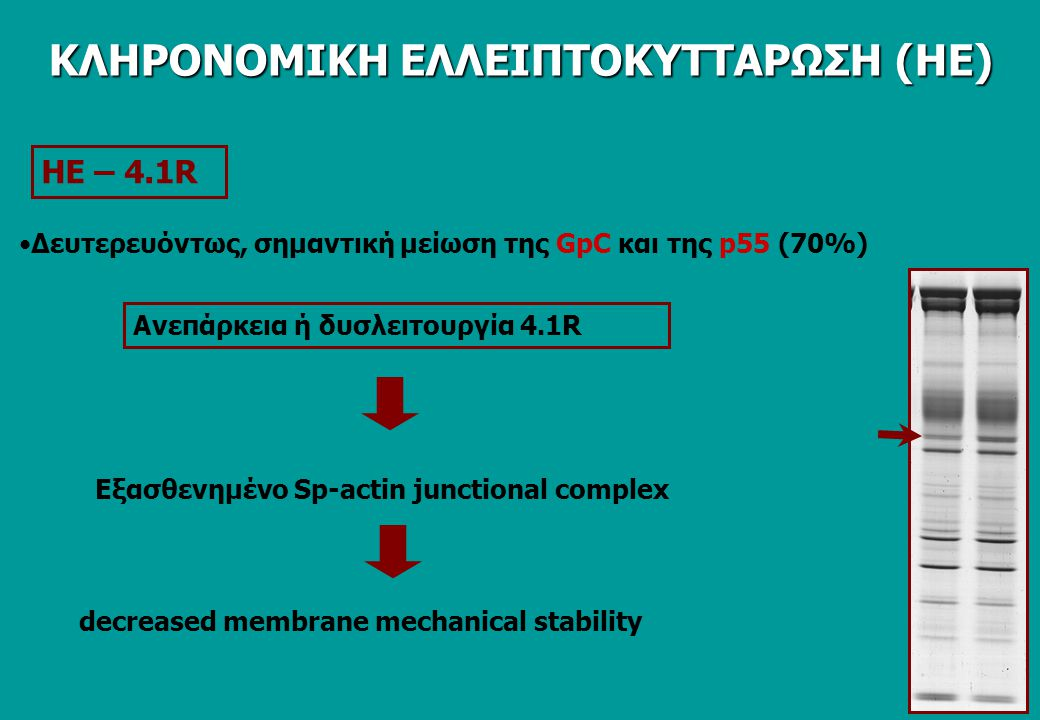 ΗΕ – 4.1R Ανεπάρκεια ή δυσλειτουργία 4.1R Εξασθενημένο Sp-actin junctional complex decreased membrane mechanical stability Δευτερευόντως, σημαντική με