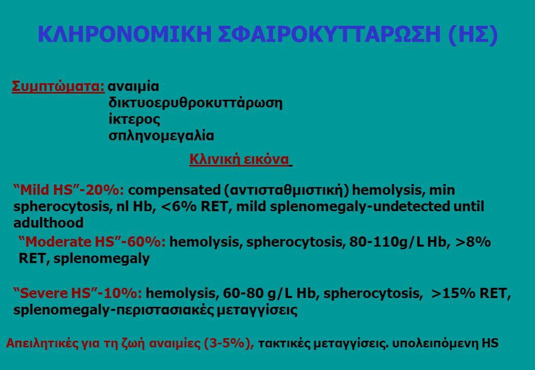 """Κλινική εικόνα """"Mild HS""""-20%: compensated (αντισταθμιστική) hemolysis, min spherocytosis, nl Hb, <6% RET, mild splenomegaly-undetected until adulthood"""