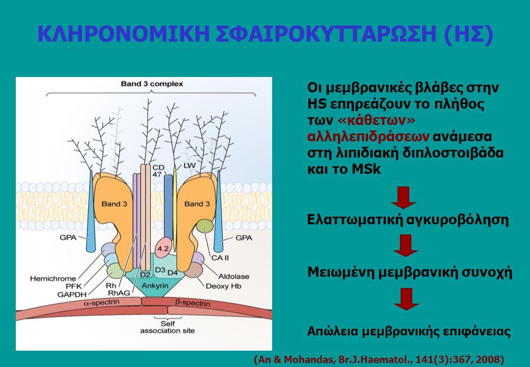 Συνήθως σε ομοζυγωτία ή σύνθετη ετεροζυγωτία (ασυμπτωματική στην απλή ετεροζυγωτία) SDS-PAGE: ολική έλλειψη, λιγότερο εκτεταμένοι σκελετοί Σπάνια σφαιροκύτταρα (ovalocytes, stomatocytes, ογκώδη RBCs, διάφορες μορφολογικές τροποποιήσεις), OFT σχεδόν φυσιολογικό 7 μεταλλαγές στην NH2-περιοχή του μορίου (ζώνη 3) 4.2 Νippon (GCT  ACT, Ala42  Thr) είναι συχνή στην Ιαπωνία (Ιταλία) EPB42(-)HS5% Υπολειπόμενη αιμολυτική αναιμία (όχι τυπική HS)/μέτρια αναιμία 4.2(-) (Β3-complex)  CD47 (Rh-complex) (δευτερογενής (-)) ΚΛΗΡΟΝΟΜΙΚΗ ΣΦΑΙΡΟΚΥΤΤΑΡΩΣΗ (ΗΣ)