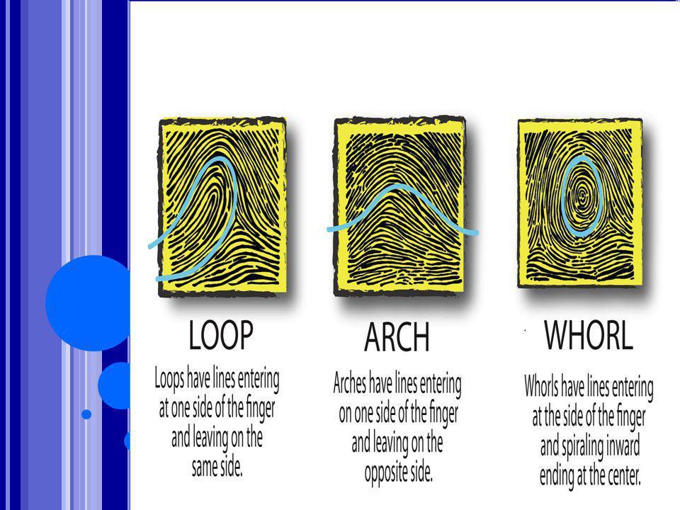 Τοξοειδής: Οι κορυφογραμμές διασχίζουν την επιφάνεια του δακτύλου χωρίς να κάμπτονται για να δημιουργήσουν κόλπο, γι αυτό δεν υπάρχει.