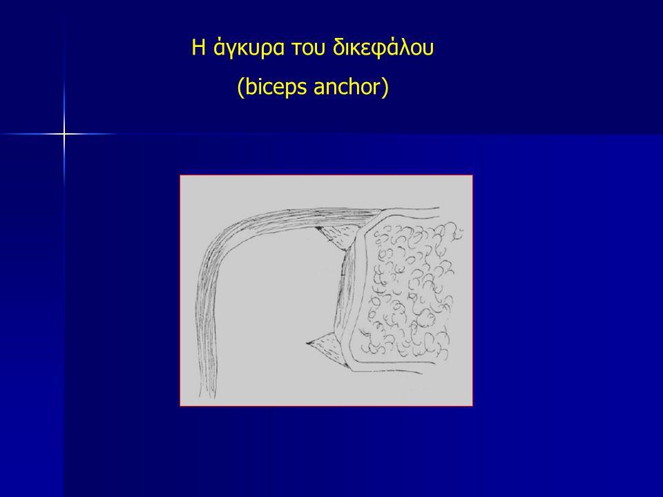 Η άγκυρα του δικεφάλου (biceps anchor)