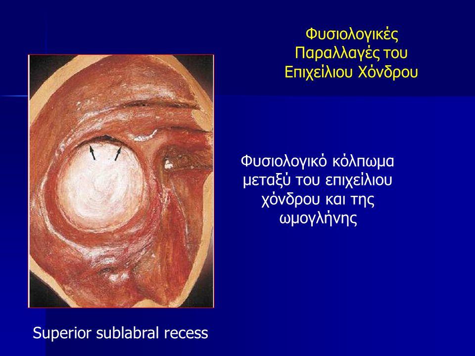 Φυσιολογικό κόλπωμα μεταξύ του επιχείλιου χόνδρου και της ωμογλήνης Superior sublabral recess Φυσιολογικές Παραλλαγές του Επιχείλιου Χόνδρου
