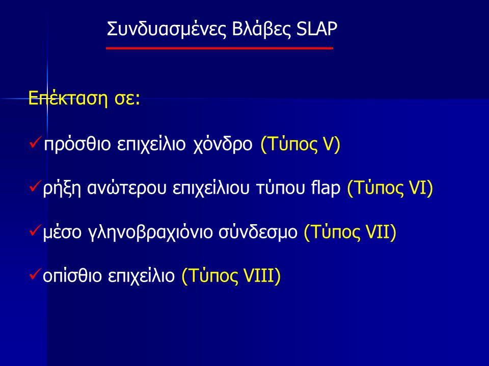 Συνδυασμένες Βλάβες SLAP Επέκταση σε: πρόσθιο επιχείλιο χόνδρο (T ύπος V) ρήξη ανώτερου επιχείλιου τύπου flap (Tύπος VI) μέσο γληνοβραχιόνιο σύνδεσμο